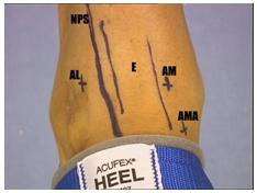Abordajes en la artroscopia
