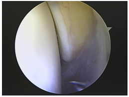 Maleolo interno en la artroscopia de tobillo